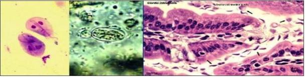 Giardia intestinal