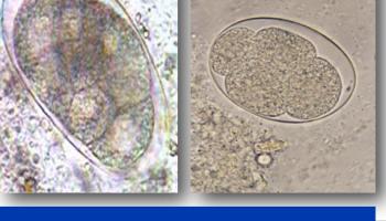 100+ Gambar Telur Cacing Cestoda Paling Hist